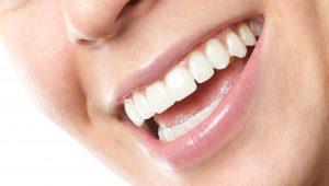 lente nos dentes